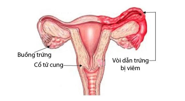 viêm ống dẫn trứng