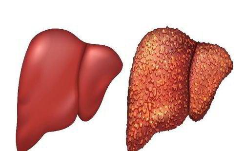 Viêm gan B là gì