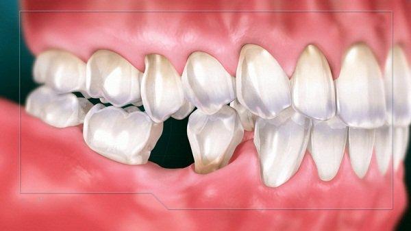 Mất răng số 6