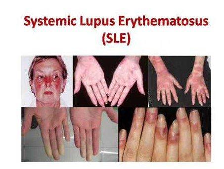 Biểu hiện của Lupus ban đỏ