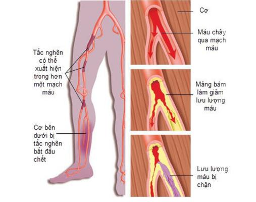 Bệnh mạch máu ngoại vi