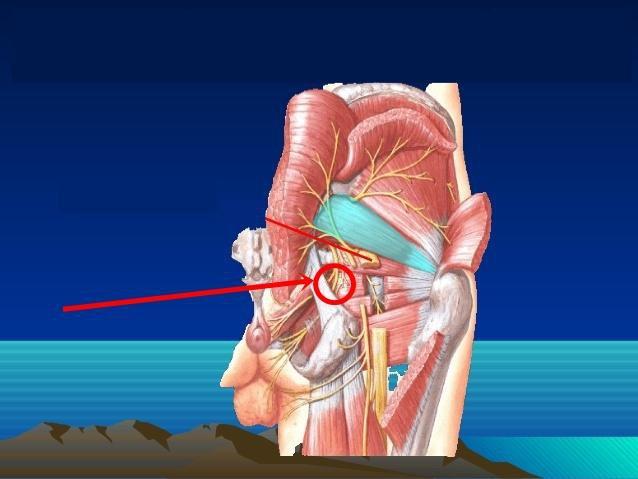 Gây tê dây thần kinh thẹn - giải pháp giúp giảm đau khi sinh con tại Vinmec