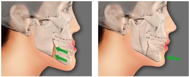 phương pháp điều trị gãy xương hàm mặt