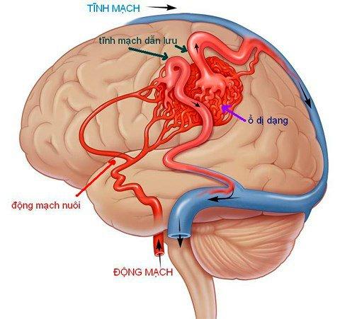 Mạch máu não dị dạng