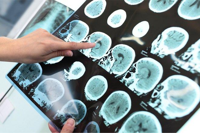Nhận diện bệnh alzheimer qua biểu hiện cơ thể