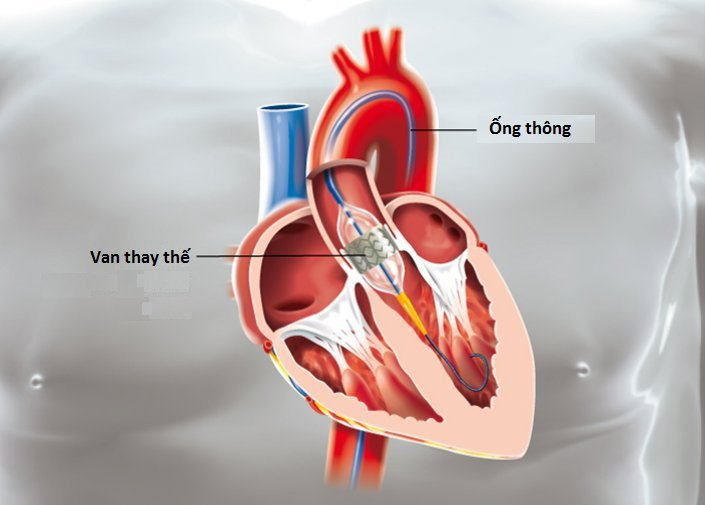Thay van động mạch chủ TAVI