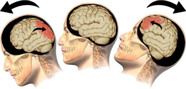 Chấn thương sọ não: Nhận biết và điều trị thế nào?   Vinmec