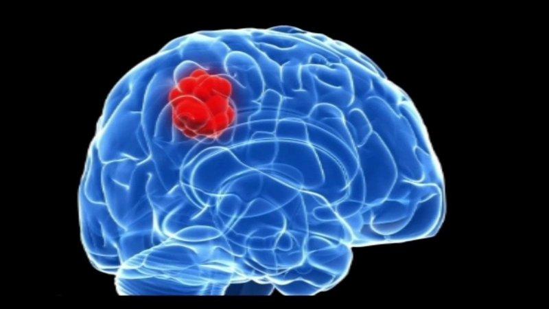 Triệu chứng u não và cách điều trị