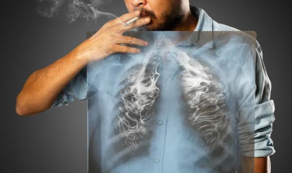 Hút thuốc lá gây ung thư phổi
