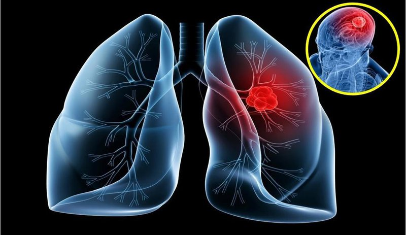Các giai đoạn phát triển của ung thư phổi