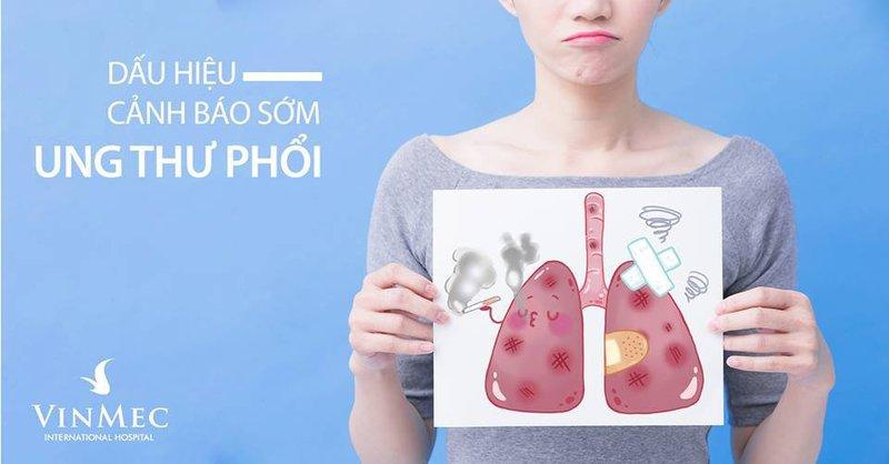 Có thể nhận diện dấu hiệu cảnh báo ung thư phổi ở giai đoạn sớm không?
