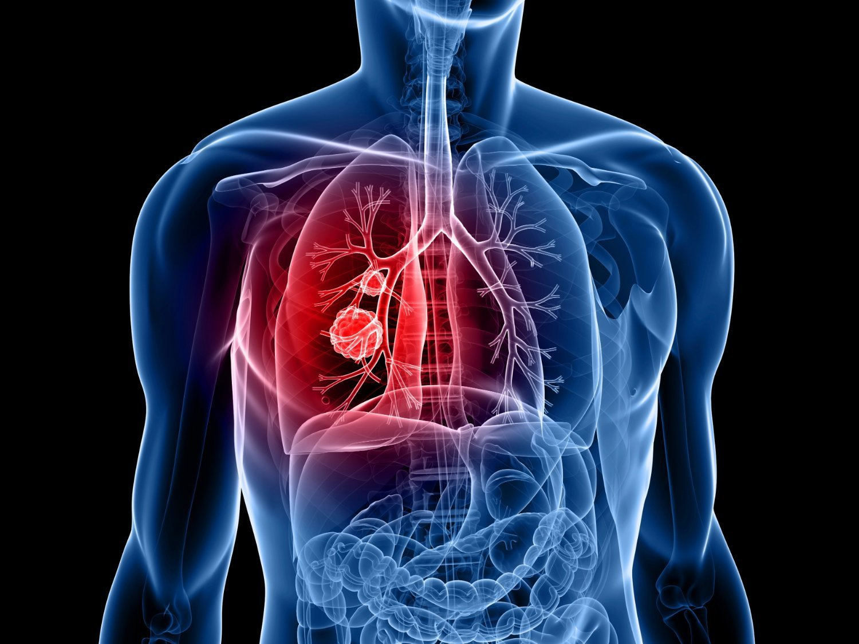 Tiên lượng điều trị ung thư phổi giai đoạn cuối