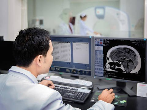 Chụp MRI sọ não