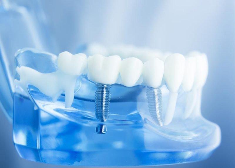 Phẫu thuật cấy ghép Implant: Giải pháp tối ưu cho người bị mất răng lâu năm