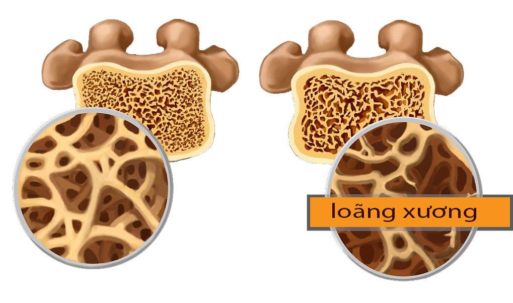 Các phương pháp đo mật độ xương để phát hiện nguy cơ loãng xương