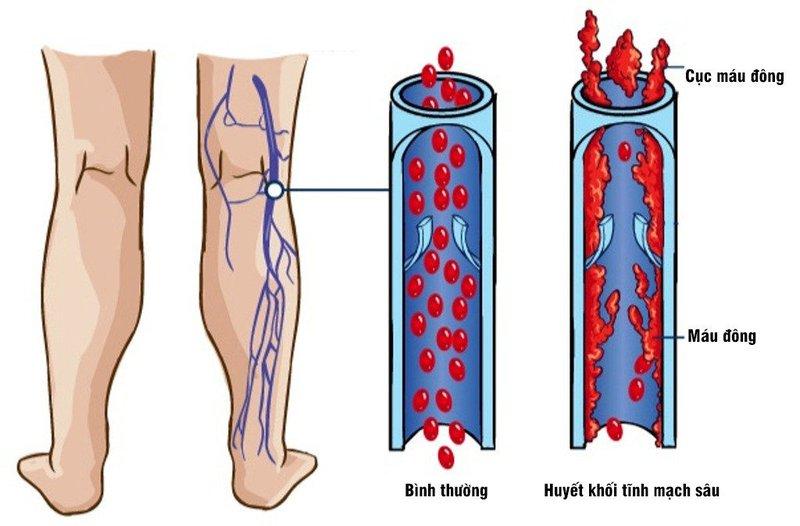 Huyết khối tĩnh mạch sâu chi dưới được chẩn đoán bằng cách nào?