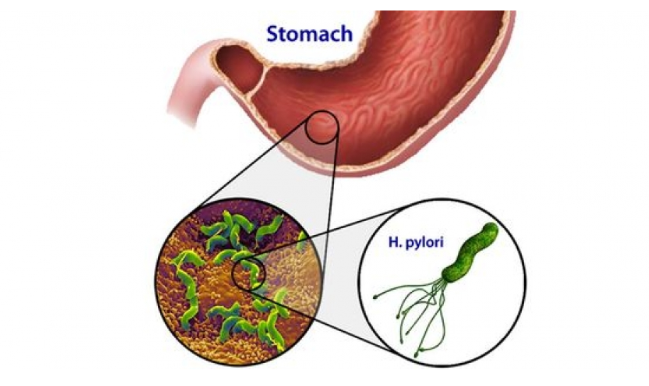 4 cách xét nghiệm phát hiện vi khuẩn HP