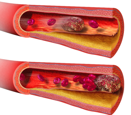 Biến chứng nguy hiểm của tắc mạch ối