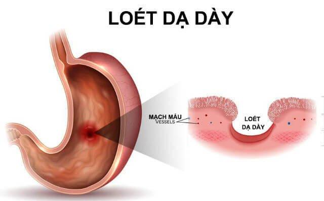 Thủng ổ loét dạ dày - tá tràng: Biến chứng nguy hiểm của viêm loét ...