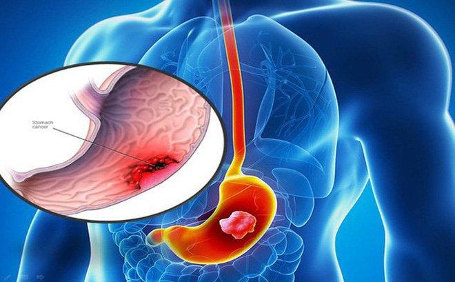 Hóa trị hỗ trợ điều trị ung thư dạ dày