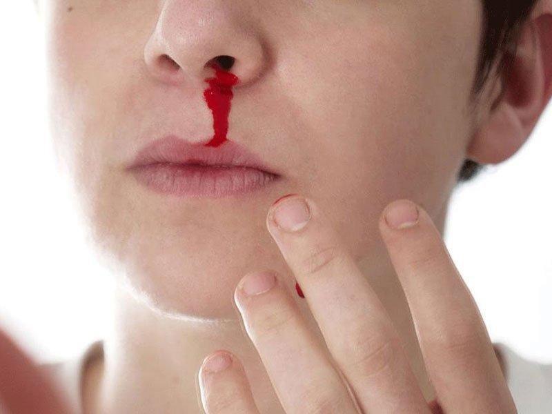 Cảnh giác biến chứng chảy máu mũi khi sốt xuất huyết