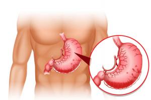 Viêm xung huyết hang vị dạ dày