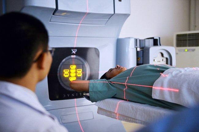 xạ trị ung thư gan tại Vinmec