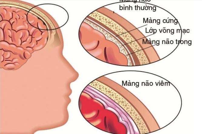 Chọc dịch tủy sống chẩn đoán viêm màng não