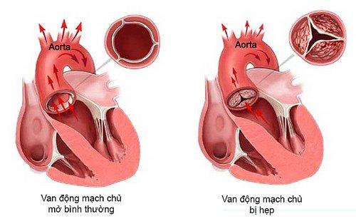 Các biện pháp điều trị bệnh hẹp van động mạch chủ