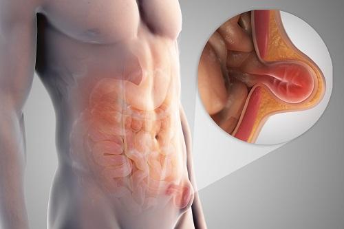 Tìm hiểu phương pháp nội soi điều trị thoát vị bẹn tại Vinmec