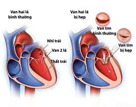 Làm thế nào để phát hiện bệnh hẹp van động mạch chủ?