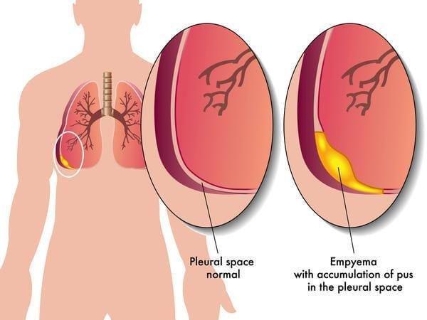 Biến chứng và hậu quả của tràn dịch màng phổi