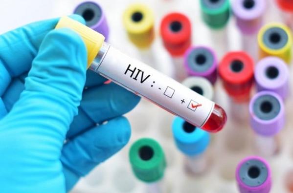 HIV dương tính là gì