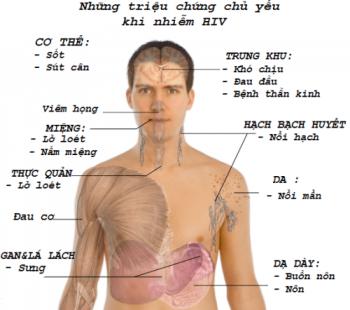 HIV bao lâu phát bệnh