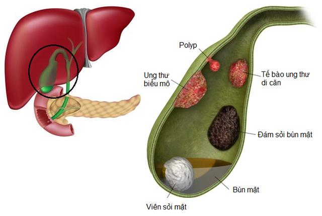 Làm thế nào để chẩn đoán và điều trị polyp túi mật?