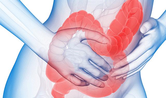 Nhận diện hội chứng ruột kích thích - phân biệt với các bệnh tiêu hóa