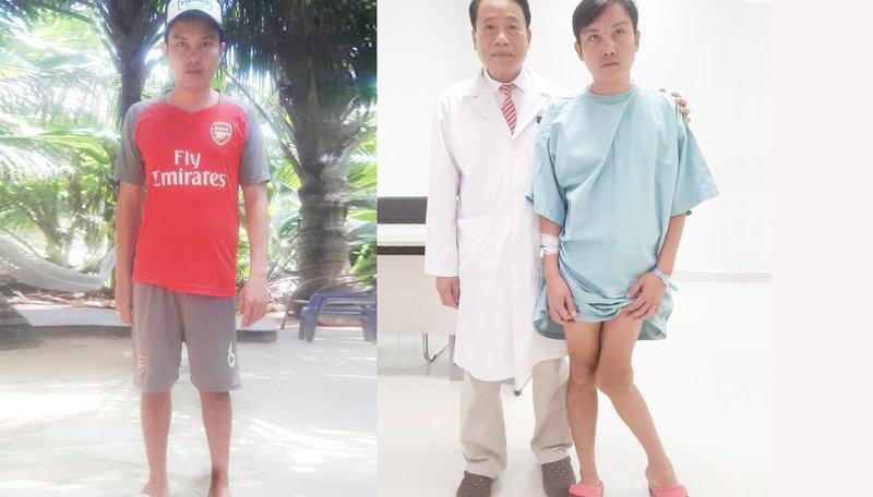 Phẫu thuật mổ chân khèo cho bệnh nhân Phú Quốc