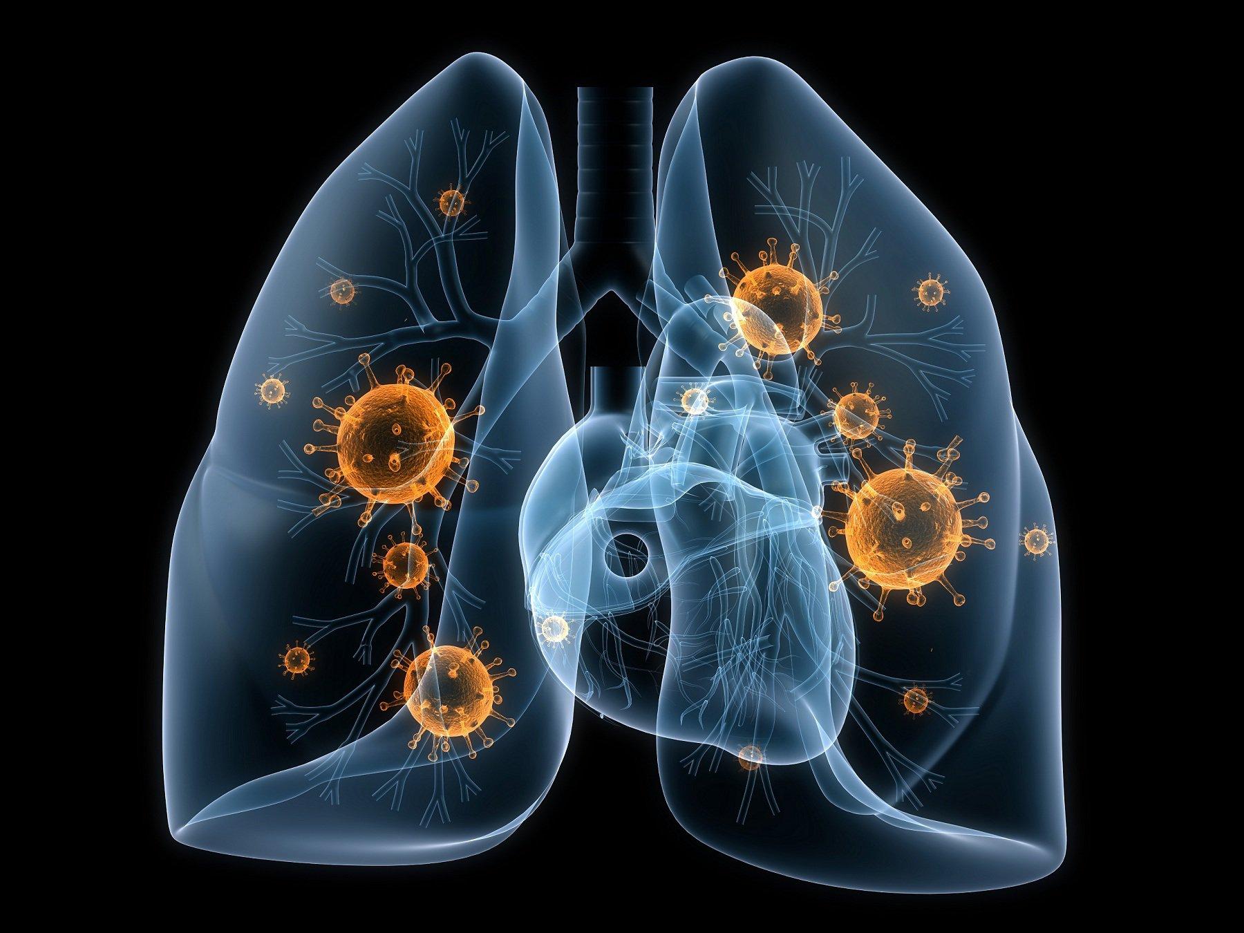 Ho ra máu có thể do một số bệnh nguy hiểm từ phổi