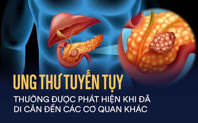 ung-thu-tuy