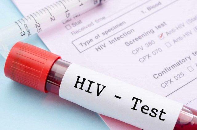 Thời điểm nào xét nghiệm HIV cho kết quả chính xác nhất? | Vinmec