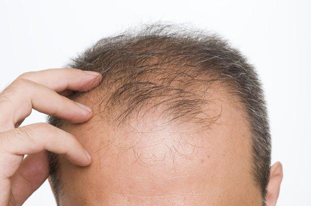 Rụng tóc ở nam giới: Những điều cần biết