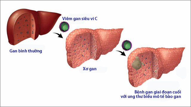 Đánh giá mức độ xơ gan do viêm gan C nhờ siêu âm đàn hồi mô tiên tiến