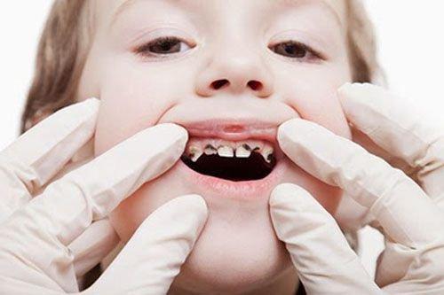 Viêm tủy răng sữa rất dễ xảy ra ở trẻ em, chẩn đoán và điều trị