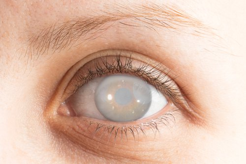 Đục thủy tinh thể do tiểu đường ảnh hưởng đến bệnh nhân tiểu đường và gây dao động thị lực