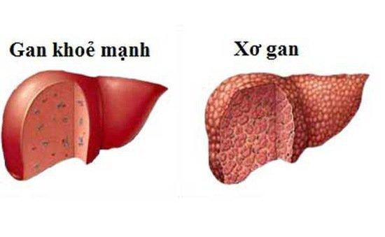 Làm thế nào để xác định gan bị xơ hóa?