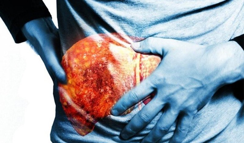 Các cấp độ của xơ hóa gan