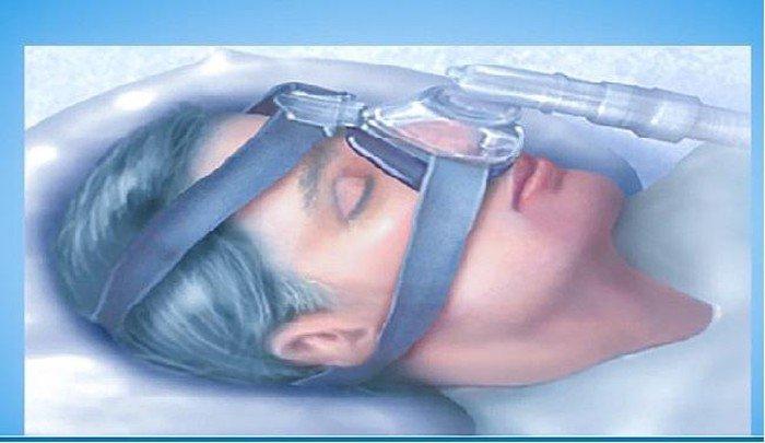 Điều trị hội chứng ngưng thở khi ngủ