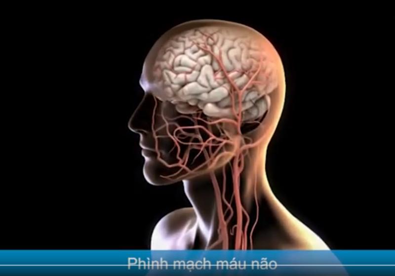 Quy trình đặt stent Phình mạch máu não