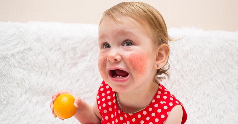 Dị ứng thức ăn ở trẻ: Những điều cần biết