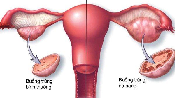 Các tiêu chuẩn chẩn đoán buồng trứng đa nang